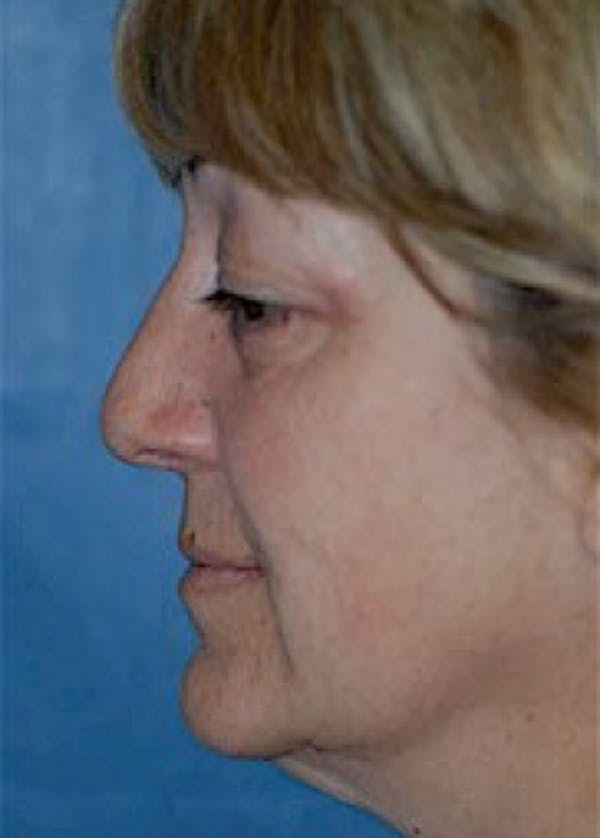 Facelift and Mini Facelift Gallery - Patient 5883867 - Image 3