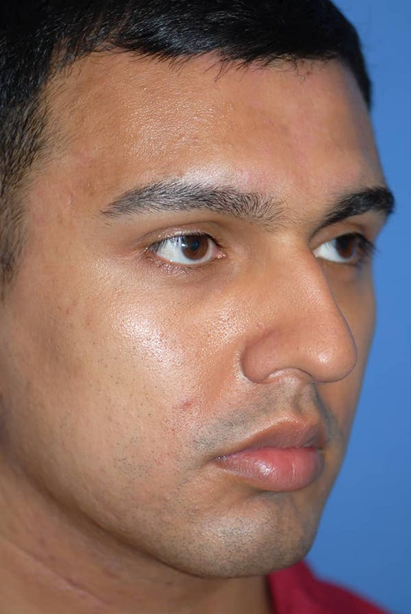 Rhinoplasty Gallery - Patient 5883869 - Image 3