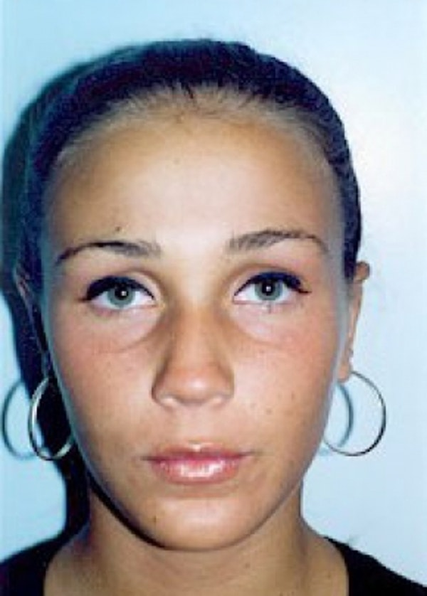 Otoplasty Gallery - Patient 5883863 - Image 2