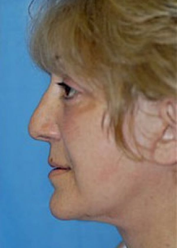 Facelift and Mini Facelift Gallery - Patient 5883867 - Image 4