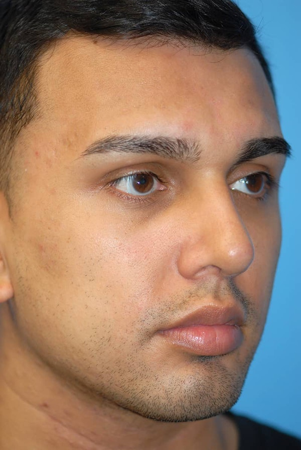 Rhinoplasty Gallery - Patient 5883869 - Image 4