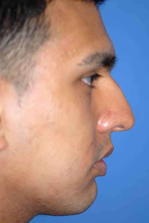 Rhinoplasty Gallery - Patient 5883869 - Image 5