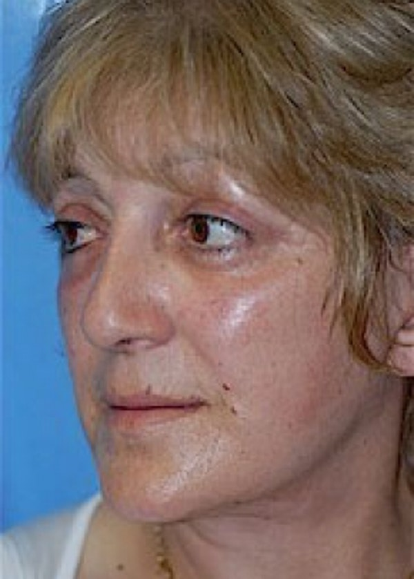 Facelift and Mini Facelift Gallery - Patient 5883867 - Image 6