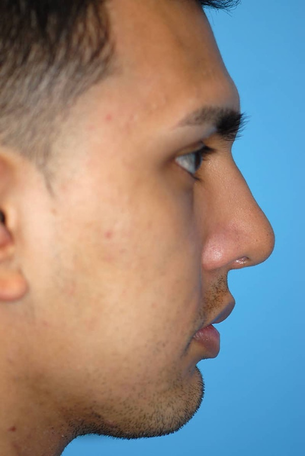 Rhinoplasty Gallery - Patient 5883869 - Image 6