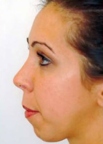 Cheeklift Threadlift Gallery - Patient 6158135 - Image 1