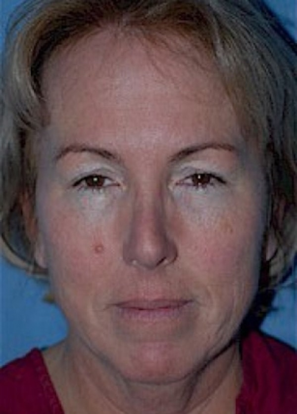 Facelift and Mini Facelift Gallery - Patient 5883875 - Image 1