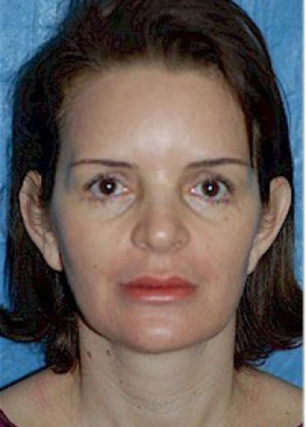 Otoplasty Gallery - Patient 5883874 - Image 1