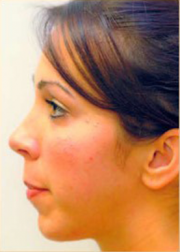 Chin & Cheek Implants Gallery - Patient 5883873 - Image 2