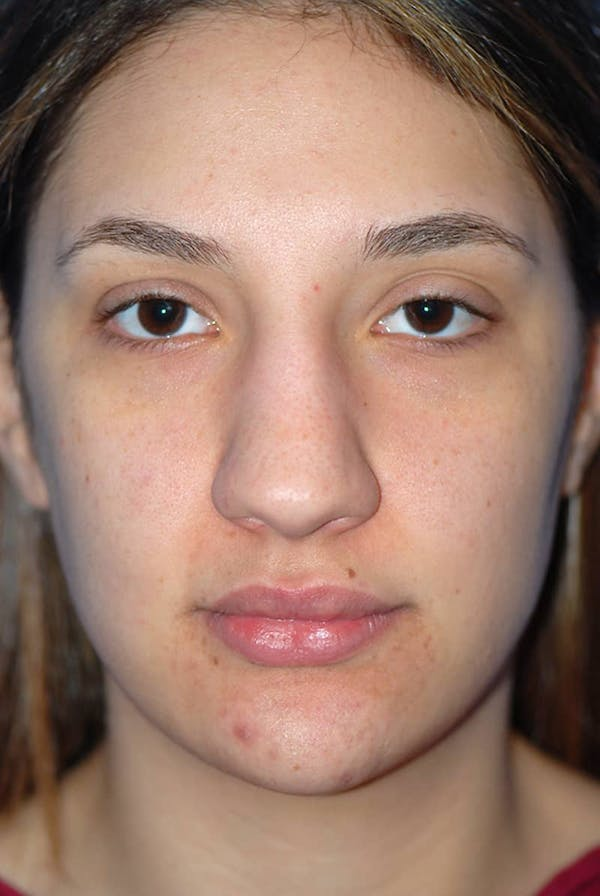 Rhinoplasty Gallery - Patient 5883880 - Image 1