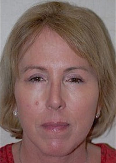 Facelift and Mini Facelift Gallery - Patient 5883875 - Image 2