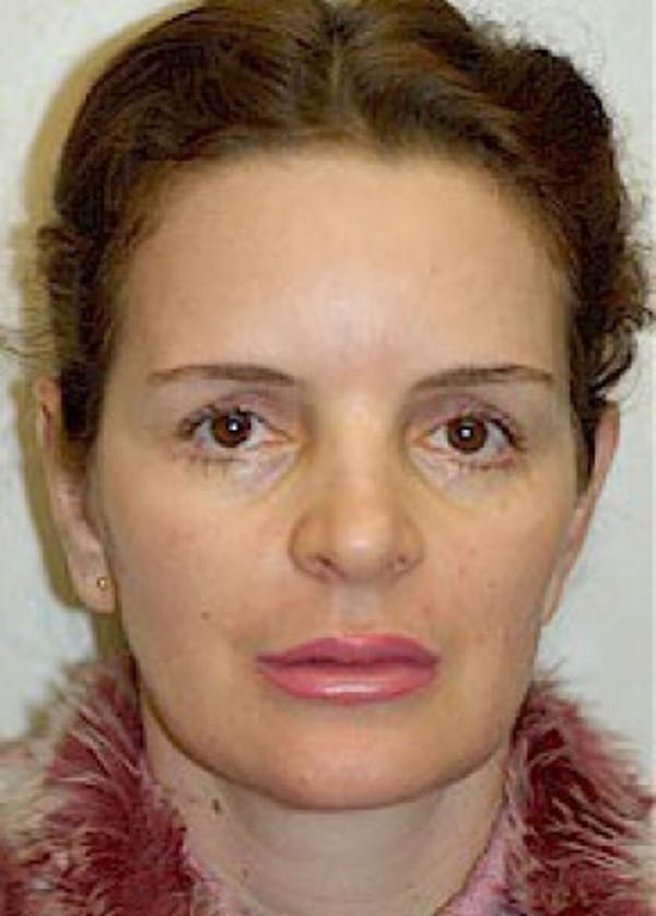 Otoplasty Gallery - Patient 5883874 - Image 2