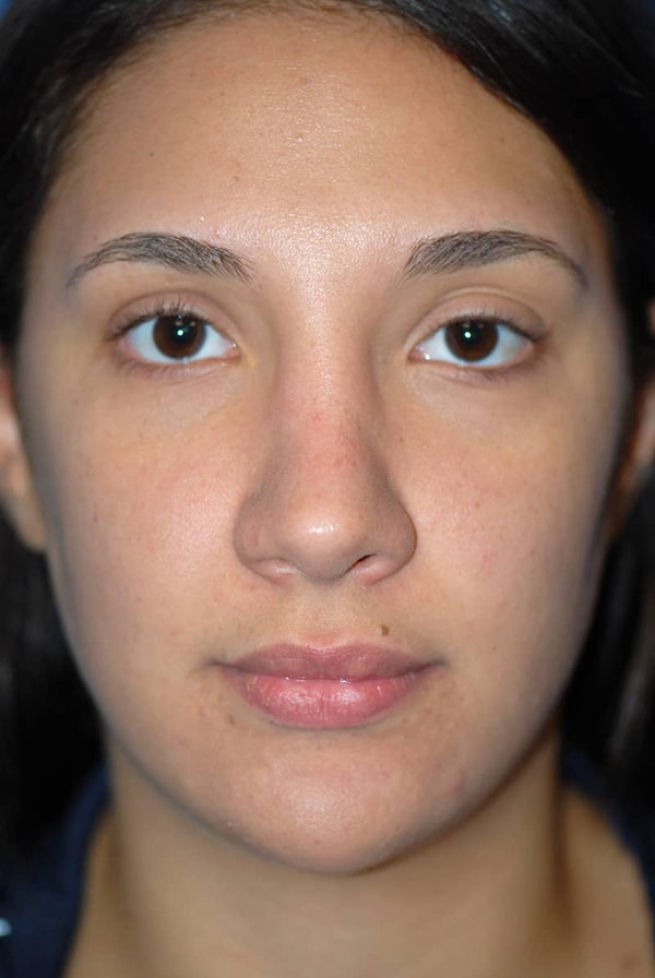 Rhinoplasty Gallery - Patient 5883880 - Image 2