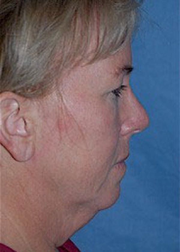 Facelift and Mini Facelift Gallery - Patient 5883875 - Image 3