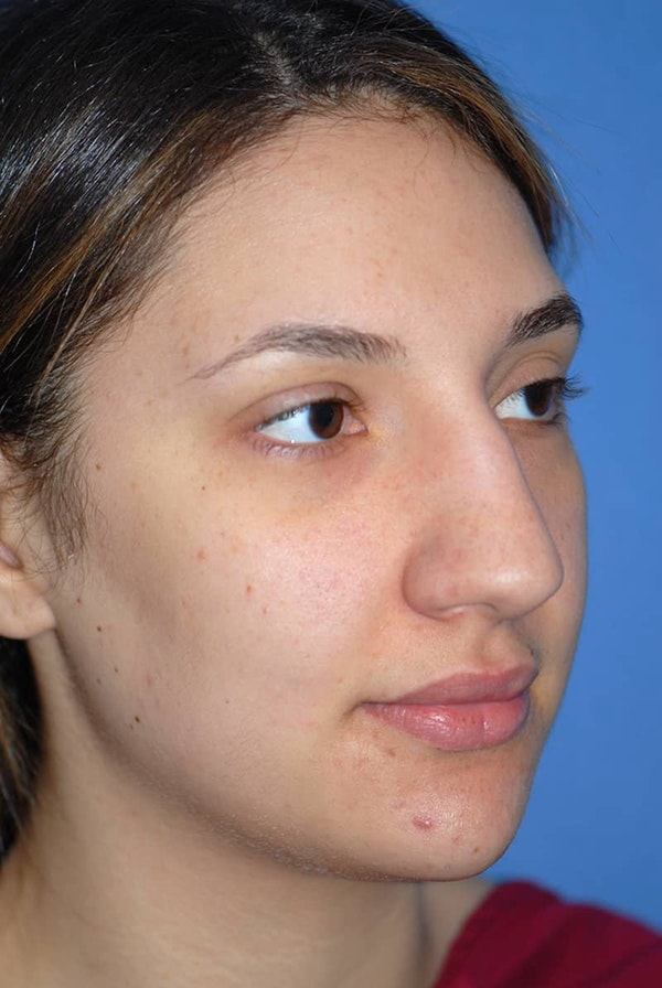 Rhinoplasty Gallery - Patient 5883880 - Image 3