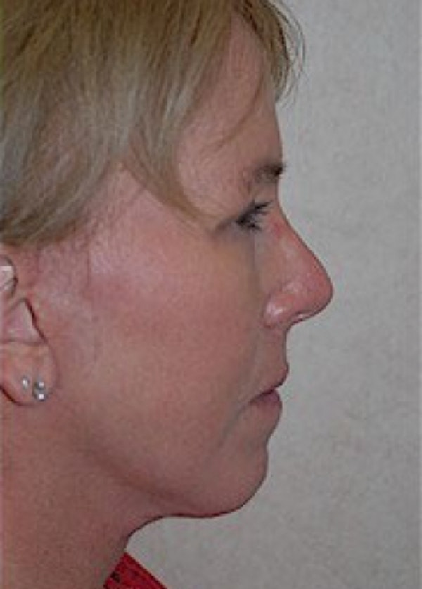 Facelift and Mini Facelift Gallery - Patient 5883875 - Image 4