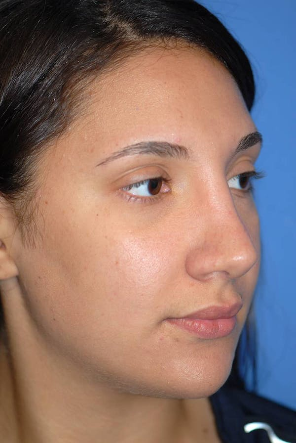 Rhinoplasty Gallery - Patient 5883880 - Image 4
