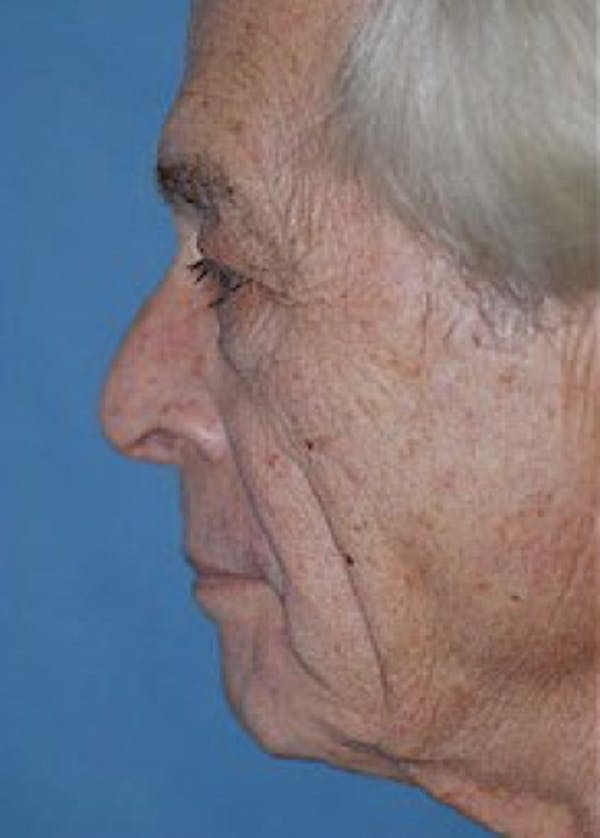 Facelift and Mini Facelift Gallery - Patient 5883883 - Image 1