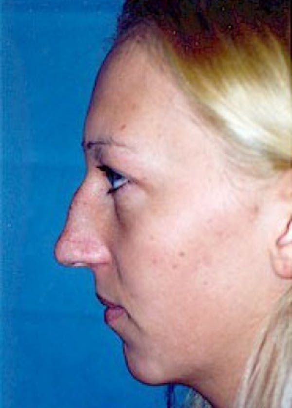 Chin & Cheek Implants Gallery - Patient 5883882 - Image 1