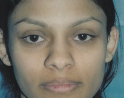 Otoplasty Gallery - Patient 5883881 - Image 1