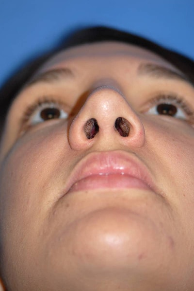 Rhinoplasty Gallery - Patient 5883880 - Image 6