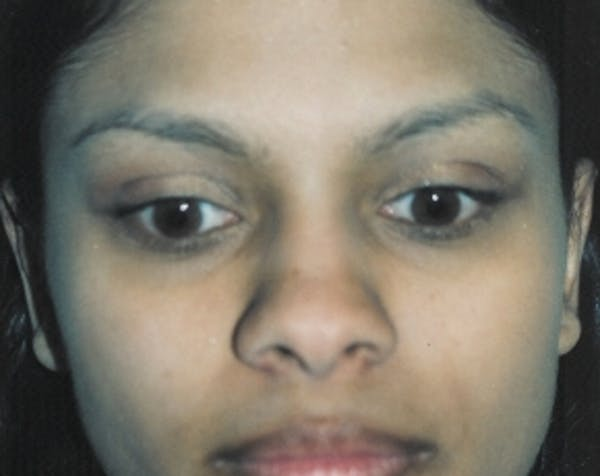 Otoplasty Gallery - Patient 5883881 - Image 2