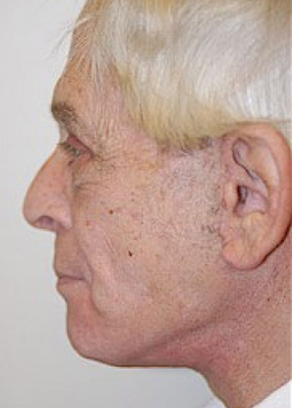 Facelift and Mini Facelift Gallery - Patient 5883883 - Image 2