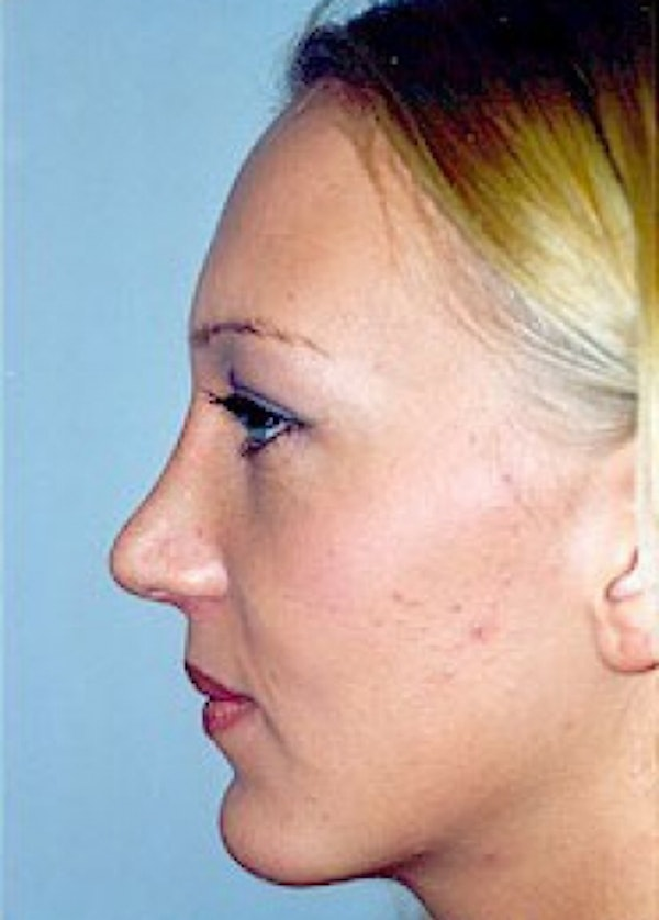 Chin & Cheek Implants Gallery - Patient 5883882 - Image 2