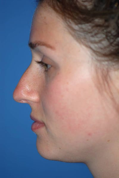Rhinoplasty Gallery - Patient 5883885 - Image 1