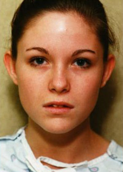 Otoplasty Gallery - Patient 5883887 - Image 1