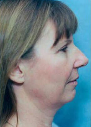 Facelift and Mini Facelift Gallery - Patient 5883886 - Image 1