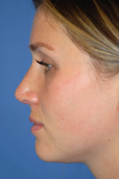 Rhinoplasty Gallery - Patient 5883885 - Image 2