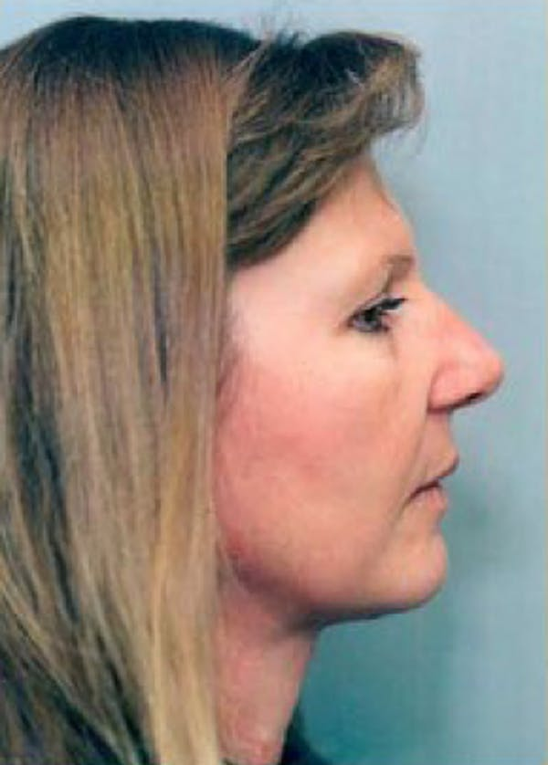 Facelift and Mini Facelift Gallery - Patient 5883886 - Image 2