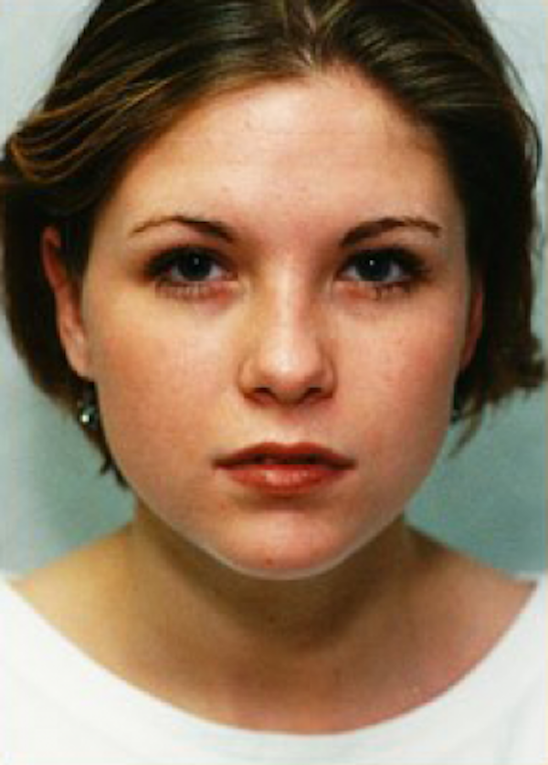 Otoplasty Gallery - Patient 5883887 - Image 2