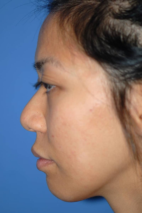 Rhinoplasty Gallery - Patient 5883889 - Image 1