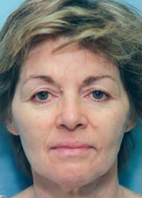 Facelift and Mini Facelift Gallery - Patient 5883890 - Image 1