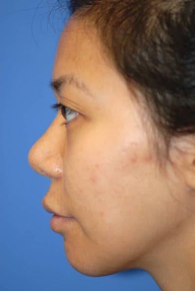 Rhinoplasty Gallery - Patient 5883889 - Image 2