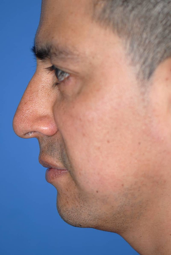 Rhinoplasty Gallery - Patient 5883892 - Image 1