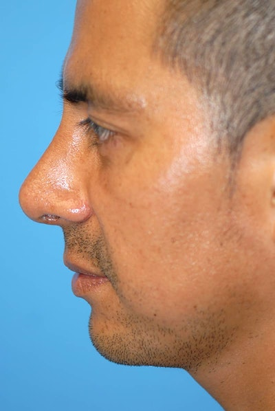 Rhinoplasty Gallery - Patient 5883892 - Image 2