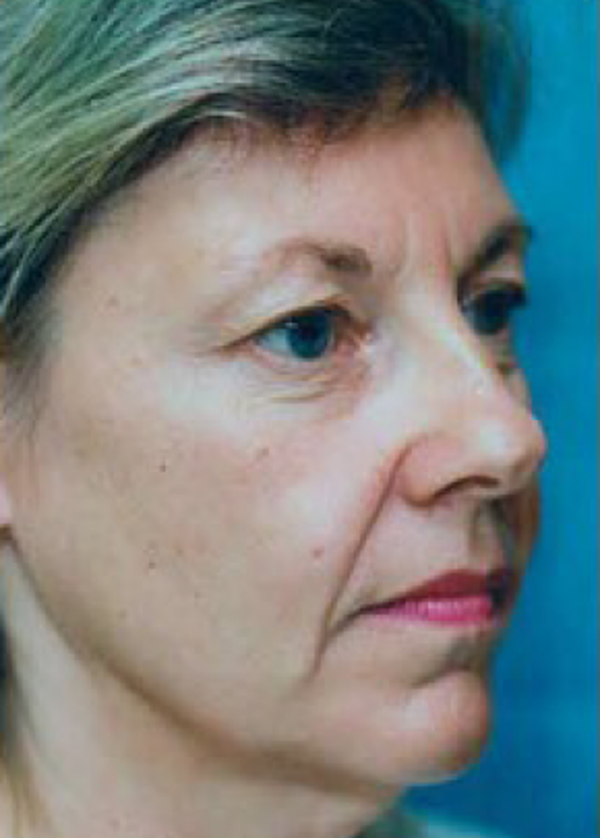 Facelift and Mini Facelift Gallery - Patient 5883894 - Image 1