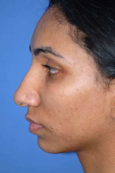 Rhinoplasty Gallery - Patient 5883893 - Image 1