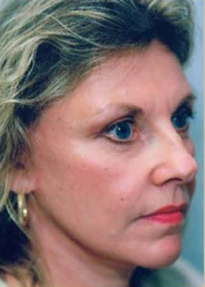 Facelift and Mini Facelift Gallery - Patient 5883894 - Image 2