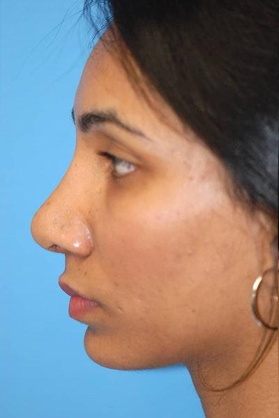 Rhinoplasty Gallery - Patient 5883893 - Image 2
