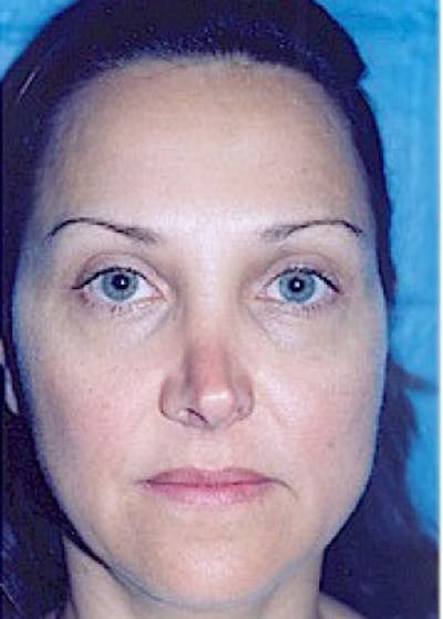 Rhinoplasty Gallery - Patient 5883905 - Image 1