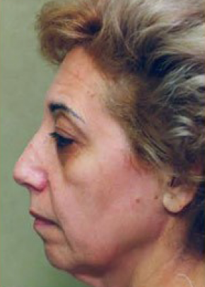 Facelift and Mini Facelift Gallery - Patient 5883898 - Image 1