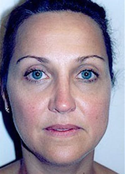 Rhinoplasty Gallery - Patient 5883905 - Image 23
