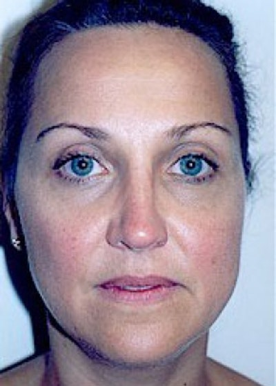 Rhinoplasty Gallery - Patient 5883905 - Image 2