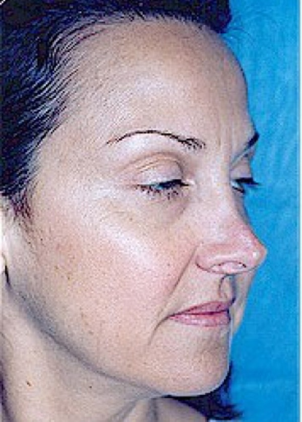 Rhinoplasty Gallery - Patient 5883905 - Image 3