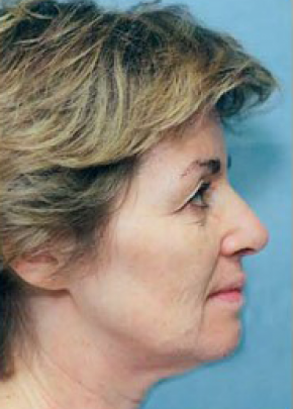 Facelift and Mini Facelift Gallery - Patient 5883901 - Image 1