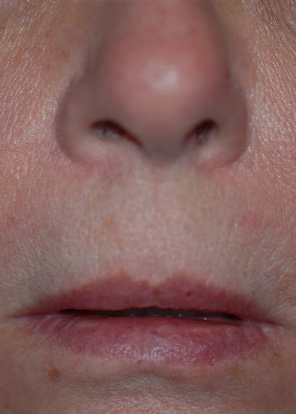 Lip Enhancement Gallery - Patient 5883902 - Image 1