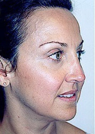 Rhinoplasty Gallery - Patient 5883905 - Image 4